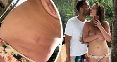 Chrissy Teigen Puts Stretch Marks on Display, Saying: THIS IS MY BODY!