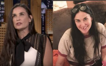 Demi Moore MISSING TWO FRONT TEETH!