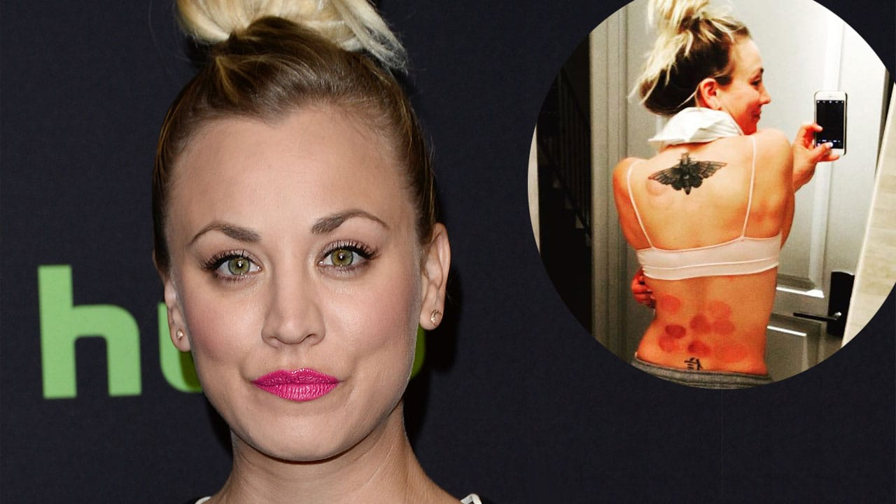 CUPPING AWAY HER PAIN: Kaley Cuoco Shows Off Her New Bruises! image