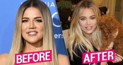 Khloe Kardashian Says She'll Get a Nose-job One Day
